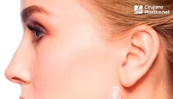 Cirugia de orejas u otoplastia
