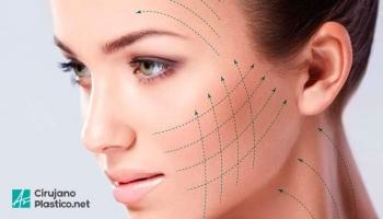 Lifting Facial o ritidectomia