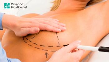 Elevación de mamas o mastopexia